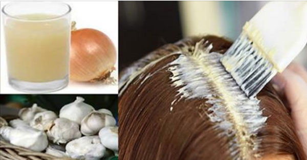 YOU CAN MAKE YOUR SCALP GROW HAIR BACK NATURALLY, JUST FOLLOW THESE SIMPLE STEPS