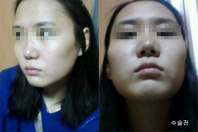 짱이뻐! - Transformed Into V-Line Face Thanks To Korea Face Contouring