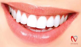 Nha khoa quận 10 BS Mai Xuân Ngọc bọc răng sứ