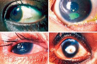 Pengobatan Terapi Lintah dan Penyakit Mata