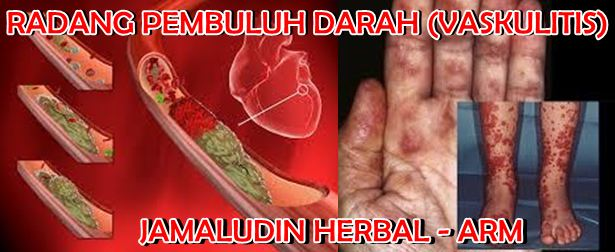 http://pengobatanmultikhasiat30.blogspot.co.id/2018/02/cara-mengobati-vaskulitis-secara.html