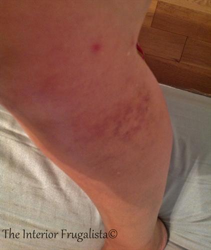 vacation injury