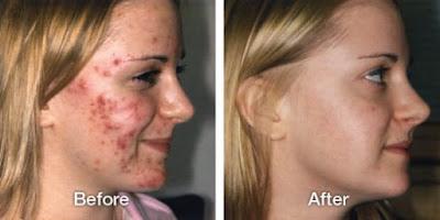 Crème maison anti-acné pour éliminer les boutons d'acné rapidement