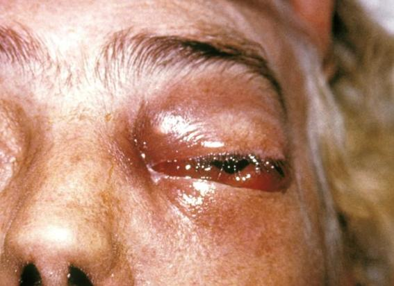 Mucormycosis Periorbital Fungal Infection