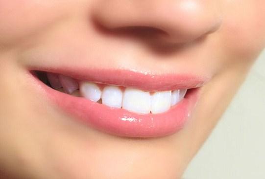 tips mudah merawat gigi agar tetap putih dan sehat