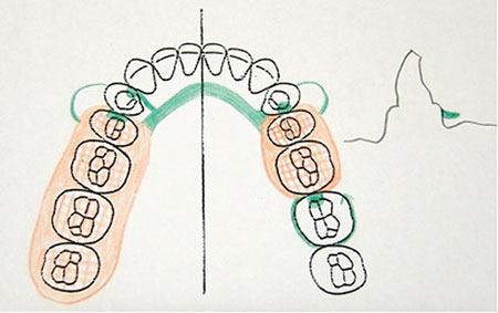 removable partial denture design