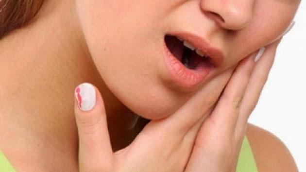Ternyata Inilah Obat Sakit Gigi yang Ampuh dan Belum Diketahui Oleh Banyak Orang