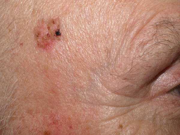 Kératose actinique traitement : tâches cutanées rouge... lésions sur votre visage, le dos de vos mains, cuir chevelu.