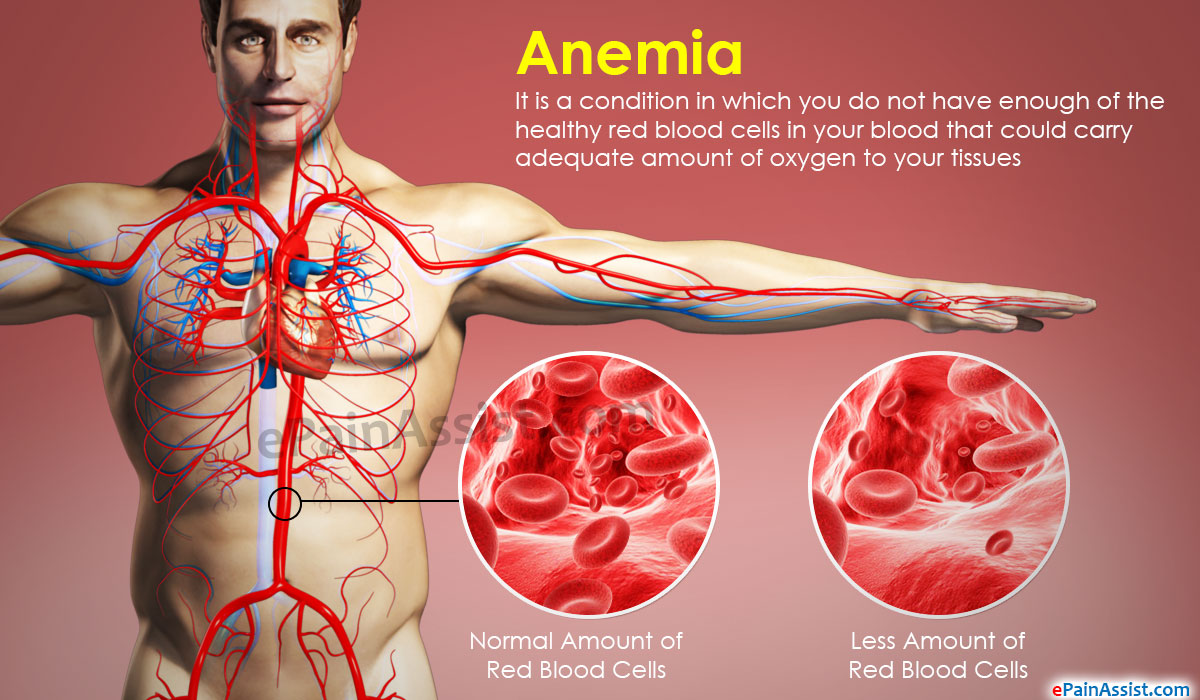 Daily Meal Plan for People With Anemia
