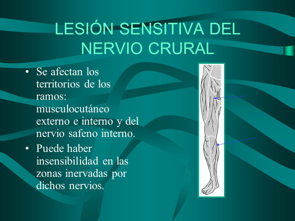 Lesión nervio crural - Cruralgia - indicaciones en casa ~ Fisioterapia