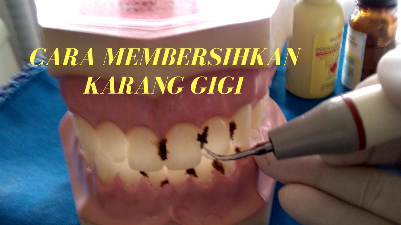 Cara Membersihkan Karang Gigi Yang Benar Caranya Tuh Disini