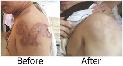 Meilibahenling Original Cream Ampuh Penghilang Bekas Luka Tatto Pada Badan
