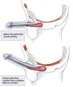 que es el dolor pelvico en hombres