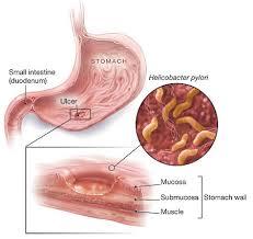 Obat Tumor Lambung Alami