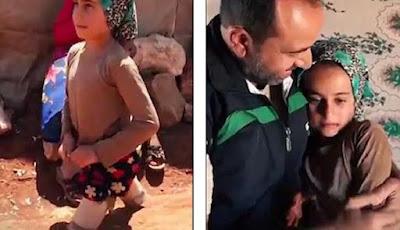 Gadis cilik Suriah yang kehilangan kakinya