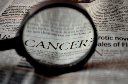 Inilah Beberapa Perawatan Kanker Terungkap