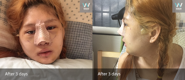 짱이뻐! - Korea Plastic Surgery Review (Eyelid, Nose, Face Contour Surgery)