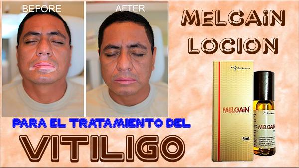 Loción Melgain Para el tratamiento del Vitíligo.