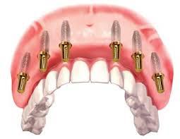 Cấy ghép implant phục hồi răng thẩm mỹ