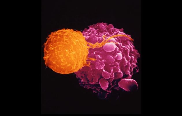 مُصادقة مُنظّمة الغِذاء والدّواء الأمريكيّة على أوّل فيروس لمُحاربة السّرطان
