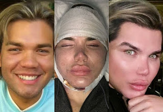 Rodrigo Alves, o Ken Humano Brasileiro antes e depois