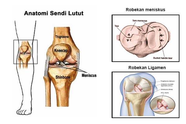 Trauma Pada Sendi Lutut