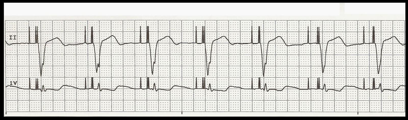 Float Nurse: EKG Rhythm Strip Quiz 188