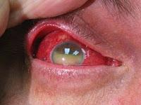 Obat Tradisional Mata Iridosiklitis