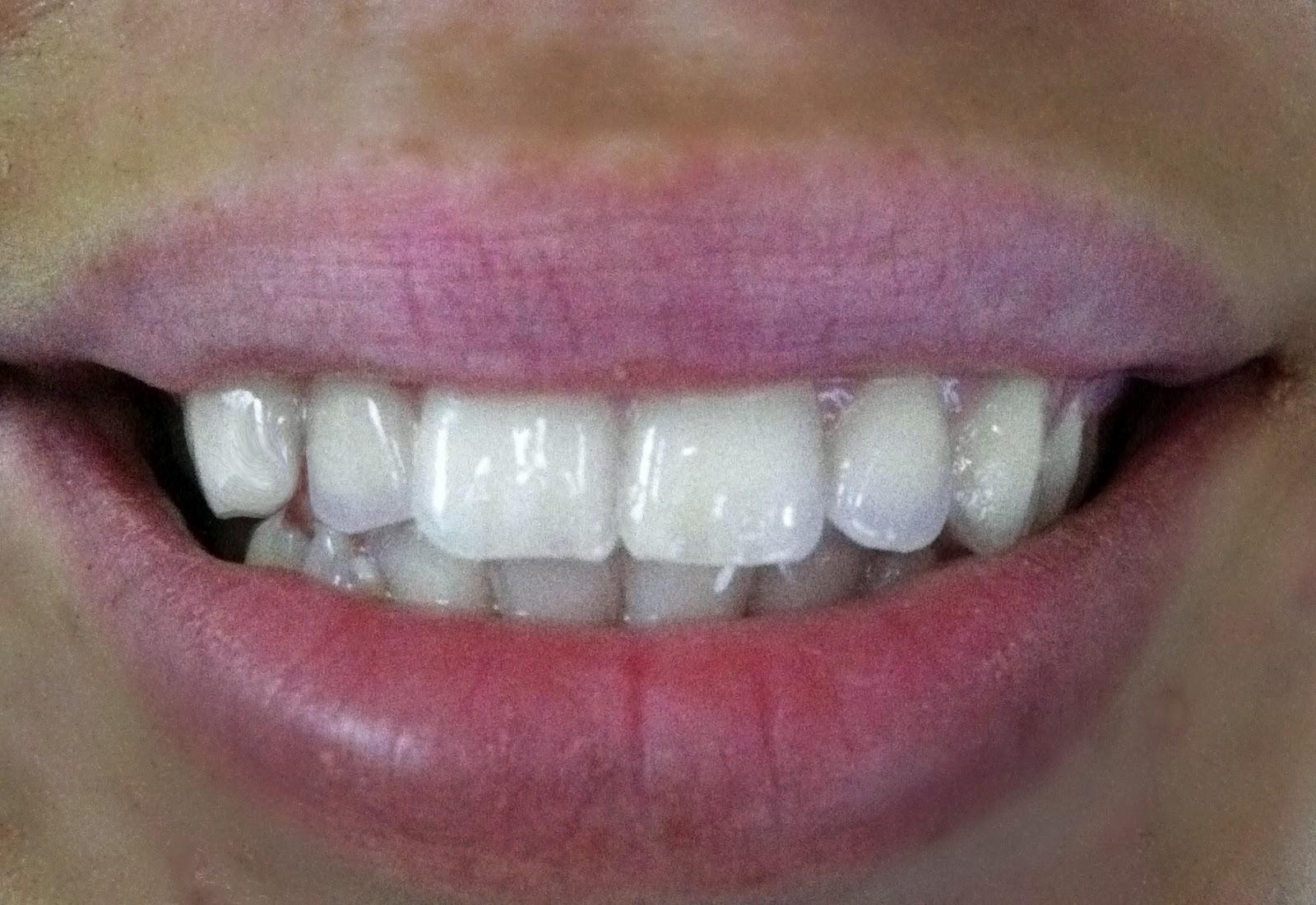 Blog By Drugstoreprincess Review Smile Sciences Teeth