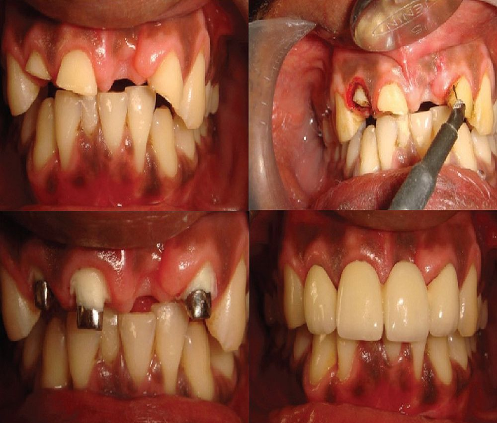 electrosurgery-dental