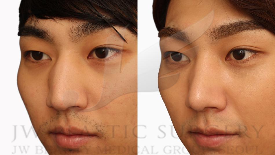 S Line Rhinoplasty Best Plastic Surgery C...