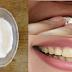 Dengan Metode Satu Ini, Kamu Bisa Putihkan Gigi Cuma Dalam 2 Menit Loh, Penasaran Cobain Aja !