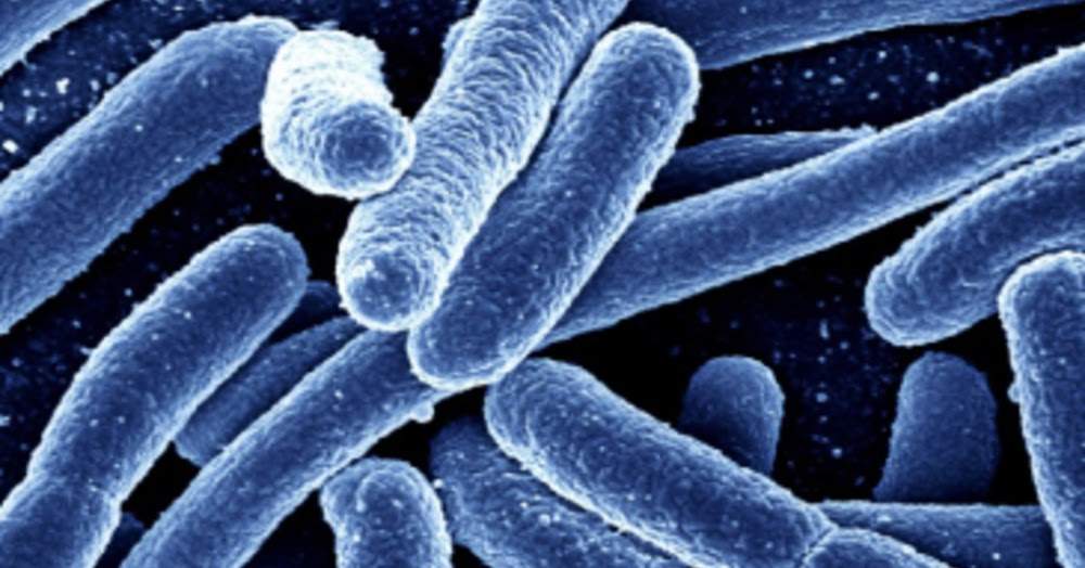 e coli identification Esherichia coli gram with 7 days 70% of patients report bloody stools 30-60% of patients report vomiting approx 5% of patients develop hus identification.