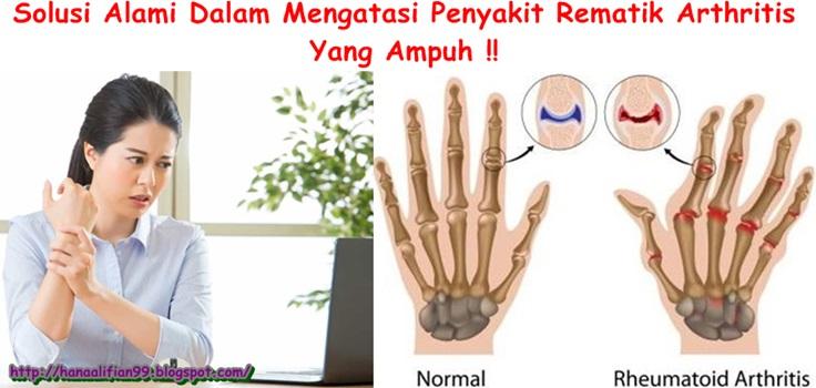 Obat Tradisional Rematik Arthritis Herbal Yang Ampuh
