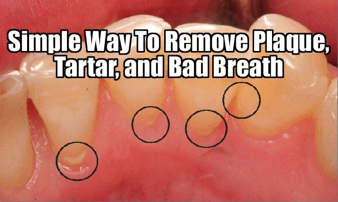 Get Rid Of Bad Breath Permanently