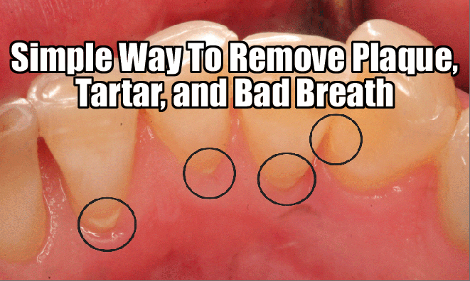 Get Rid Of Bad Breath Permanently With Just One Ingredient