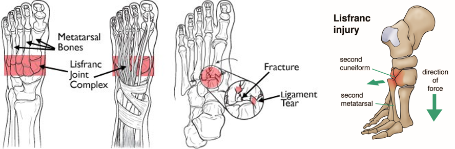 Lisfranc injury: A runners worst nightmare: February 2017
