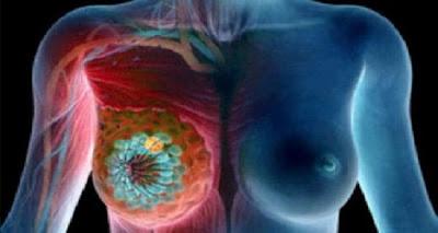 امرأ تفعله النساء يوميأ وهو السبب فى اصابه الكثير منهم بالسرطان