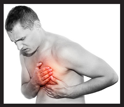 mengatasi serangan jantung