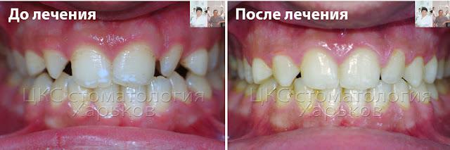 Фото до и после  лечения брекетами адентии зубов
