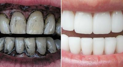 Cara Memutihkan Gigi Kuning Secara Alami dengan Arang Kayu