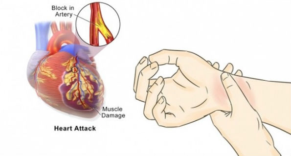 PENTING!! Inilah 5 Cara Simpel Cegah Serangan Jantung Hingga 90 Persen..