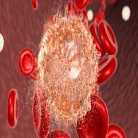 Leuquemia