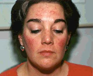acne rosacea cura