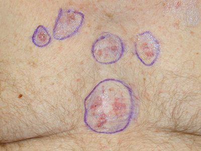Cancer Signs Treatment Skin Cancer Early Stages