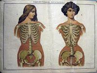 Затянутые в корсет женщины нередко падали в настоящие, глубокие обмороки