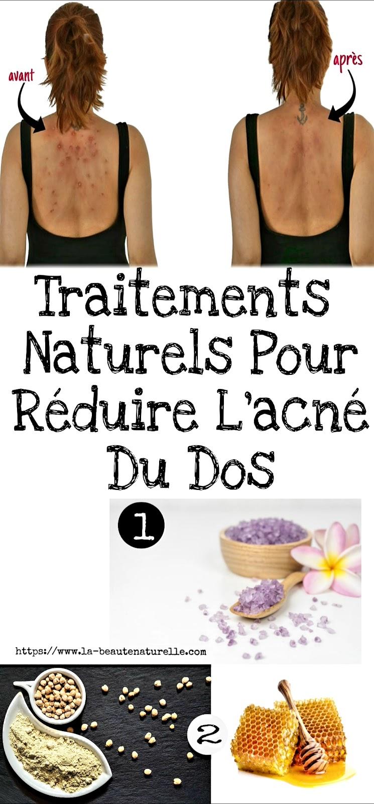 Traitements Naturels Pour Réduire L'acné Du Dos