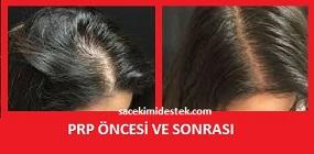 prp saç tedavisi yaptıranlar 24