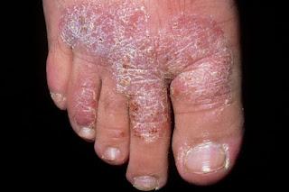 cara mengobati gatal eksim kering di kaki secara tradisional dan alami