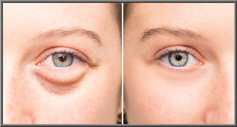 Evening Baggy Eye Solution That Removes Puffiness FAST!